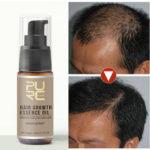 Оригинал              Лосьон против выпадения волос Обработка волос Essential Масло